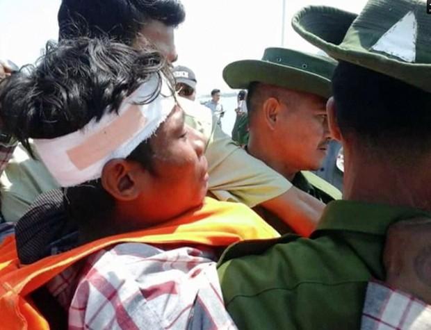 Sobrevivente ferido é resgatado por equipes de socorro após uma balsa naufragar próximo ao porto de Kyauk Phyu, em Mianmar. Ao menos 33 pessoas morreram no acidente (Foto: DVB/AP)