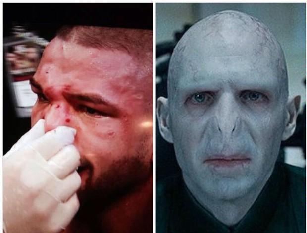 Meme Thiago Alves Pitbull Lord Voldemort