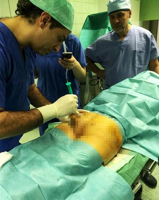 Ghazi exibe as nádegas de paciente durante cirurgia