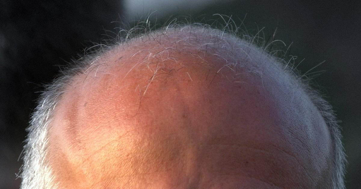 Por que algumas pessoas ficam carecas?
