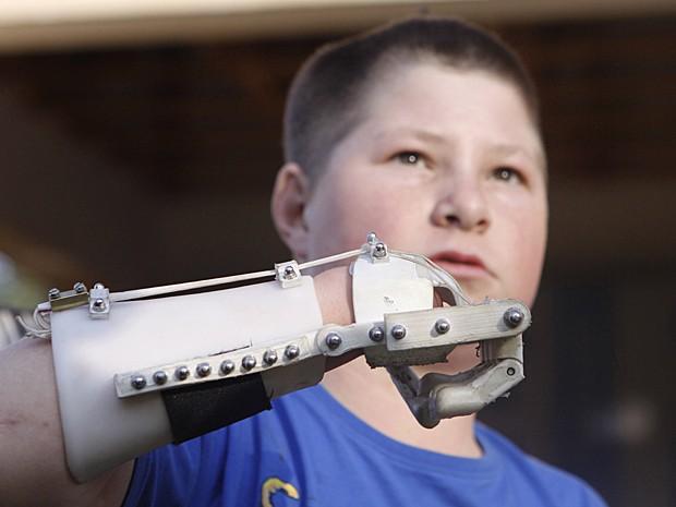 Garoto Dylan Laas mostra como sua mão robótica funciona em Joanesburgo (Foto: Denis Farrell/AP)