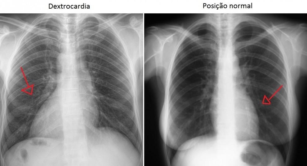 Radiografia mostra o posicionamento do coração  (Foto: A Gazeta)
