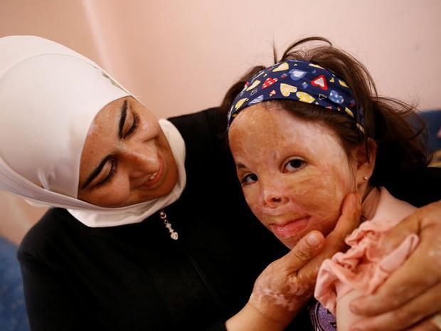 Limar, de seis anos, com a sua mãe; ela foi atingida pela explosão de um míssil na Síria (Foto: Tumay Berkin/Reuters)