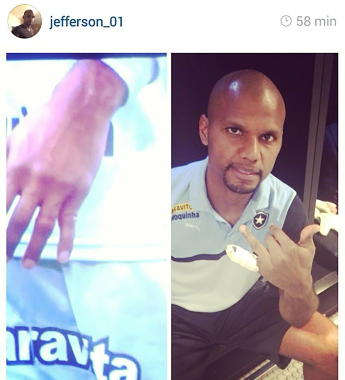 Jefferson Botafogo dedo machucado (Foto: Instagram)