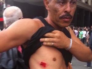 O vendedor Henrique José foi atingido por uma bala de borracha, durante manifestação dos professores no Centro do Rio (Foto: Lívia Torres / G1)