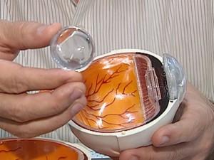 Cirurgia da catarata susbtitui lente natural por uma artificial (Foto: Reprodução/TV Tem)