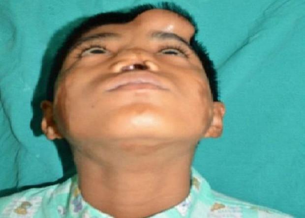 Processo de substituição de nariz levou cerca de um ano (Foto: S Niazi)