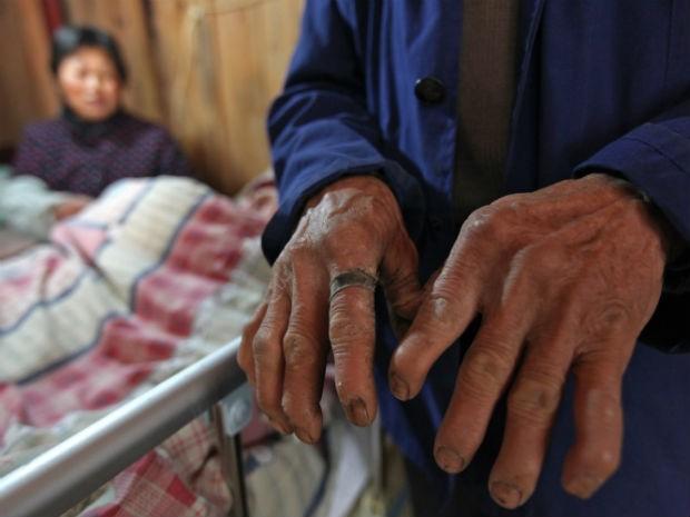 Mãos do casal ficaram deformadas após dois anos bombeando saco ressuscitador (Foto: STR / AFP)