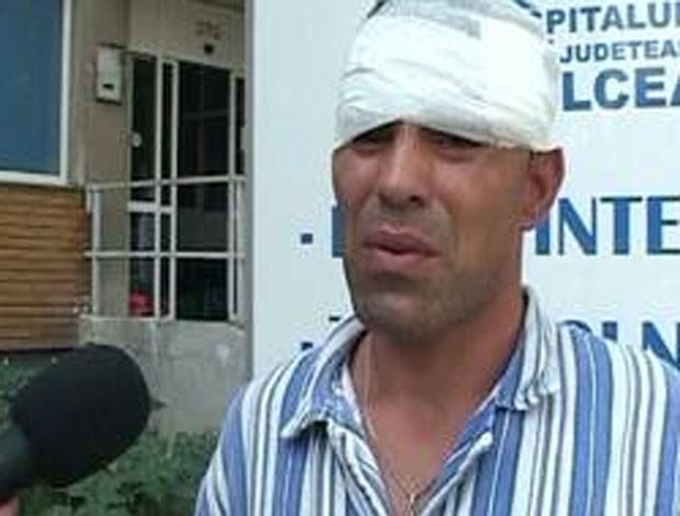 Nicolae Stan ficou com ferimento na cabeça. (Foto: Reprodução/Romania TV)