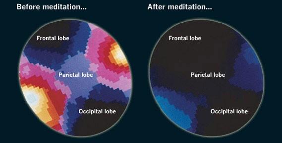 Atividade cerebral antes e depois da meditação (Foto: Reprodução)