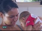 Grávida do 2º filho, mãe de bebê com microcefalia apresenta manchas
