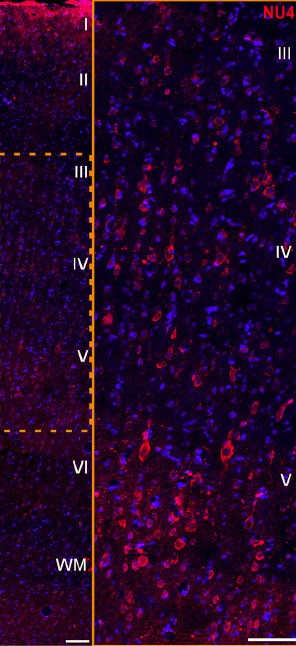 Na imagem é possível ver o ataque dos oligômeros beta-amiloide (vermelho) a neurônios de primatas. A toxina reduz a atividade dos neurônios. (Foto: Reprodução/The Journal of Neuroscience)