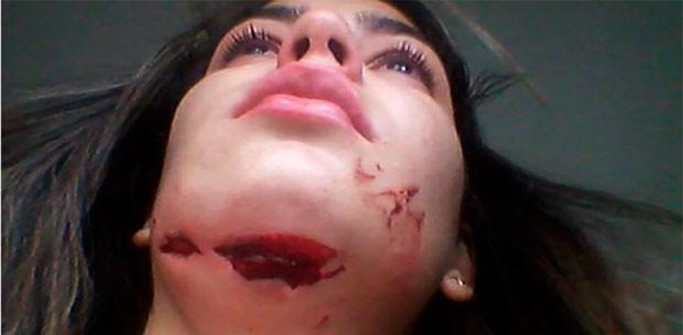 Dona de salão de beleza, Poliana de Lima levou tiro de raspão no pescoço (Foto: Poliana de Lima/Arquivo Pessoal)