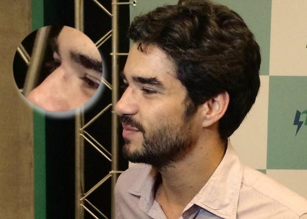 Caio Blat exibe ferimentos em sessão de cinema no Rio (Foto: Léo Martinez/EGO)