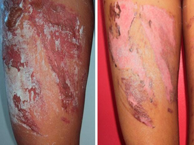 À esquerda, foto da perna na primeira semana; à direita, foto da perna nesta terça-feira  (Foto: Hiale Silva/Arquivo Pessoal)