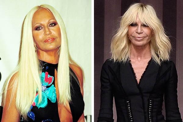 Donatella Versace em 2000 e agora (Foto: Getty Images)