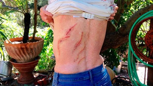 Emily Miles exibe ferimentos após ser atacada por urso na Califórnia (Foto: John Palminteri/KEYT-TV/AP)