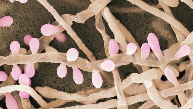 Como tratar um fungo em lábios vulvar