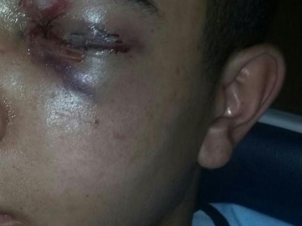 Adolescente de 15 anos fica cego do olho esquerdo após ser atingido por tiro de borracha (Foto: Arquivo Pessoal)