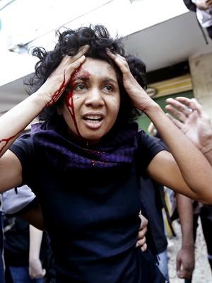 Mulher fica ferida durante os protestos no Rio de Janeiro  (Foto: AP Photo/Silvia Izquierdo)