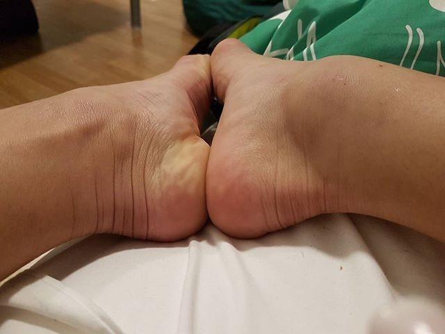 Jade Barbosa mostra tornozelo  (Foto: Reprodução / Instagram)