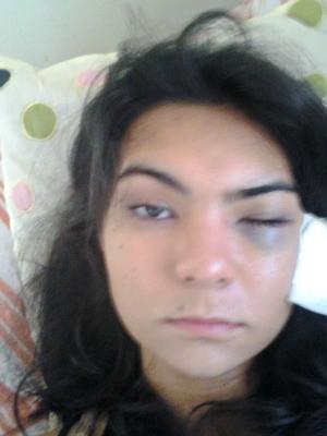 Olho de Ayume ficou fechado após agressão (Foto: Acervo pessoal)