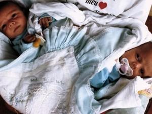 Larissa e Lorrayne Gonçalves foram separadas em julho de 2010 no Hospital Materno Infantil, em Goiânia (Foto: Cristina Cabral/ O Popular)