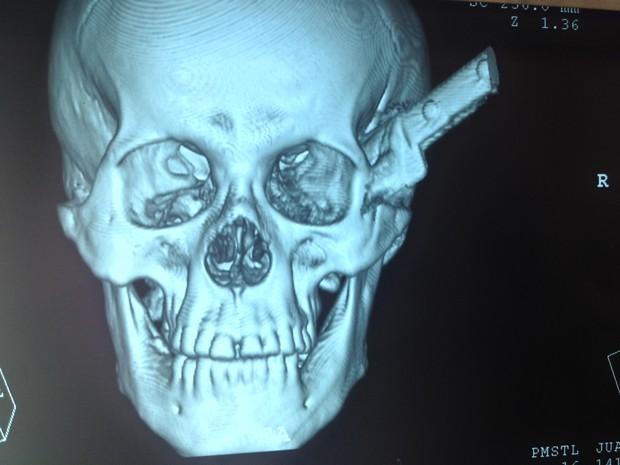 Em tomografria é possível ver a faca cravada no crânio do homem (Foto: Ellyo Teixeira/G1)