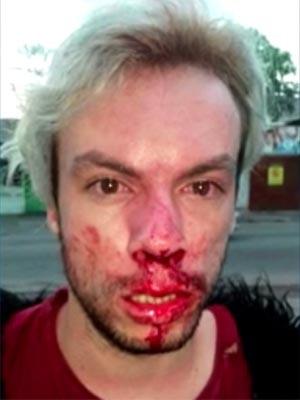 Jovem diz ter sido agredido na Zona Oeste do Rio por ser homossexual (Foto: Reprodução / TV Globo)