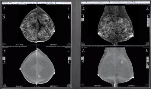 Mamografia (Foto: GE)