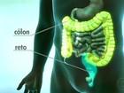 Dieta saudável pode reduzir risco de câncer em pelo menos 40%, diz Inca
