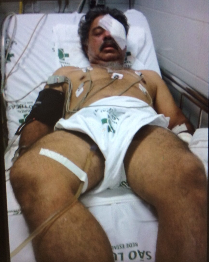 Suspeito continua internado no hospital no Espírito Santo (Foto: Reprodução/ TV Gazeta)