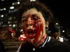 Polícia quer ouvir manifestante que teve olho perfurado em ação da PM