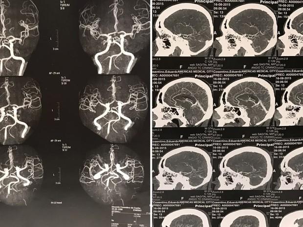 Exame aneurisma cerebral Eduardo Cunha (Foto: Reprodução)