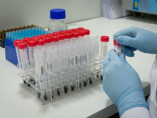 Técnica de exame toxicológico é considerada a mais avançada do setor (Foto: Divulgação)