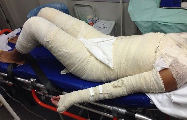 Adolescente de 14 anos tem o corpo queimado por companheiro em Goiânia, Goiás (Foto: Reprodução/ Ag Mais)