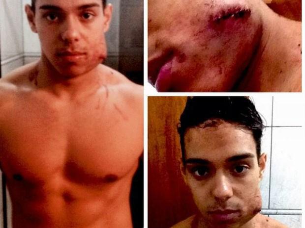 Rapaz postou fotos do rosto machucado após agressão na Unicep em São Carlos (Foto: Antonio Carlos Archibald/ Arquivo Pessoal)