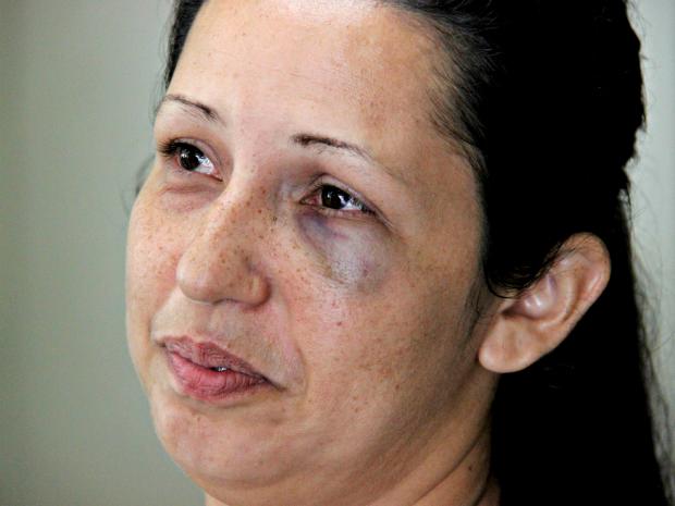 """Mulher afirma que agressões """"são incontáveis"""" (Foto: Diego Toledano/ G1 AM)"""