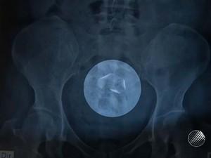 Radiografia indicou corpo estranho na professora (Foto: Imagens/ Tv Bahia)