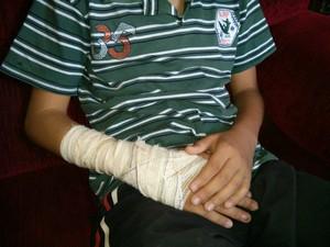 Durante a agressão, adoelscente teve a mão machucada (Foto: Cláudio Nascimento / TV TEM)