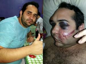 Fábio Germano, de 27 anos, foi agredido na madrugada do domingo (30), em Rio Branco (Foto: Arquivo Pessoal)