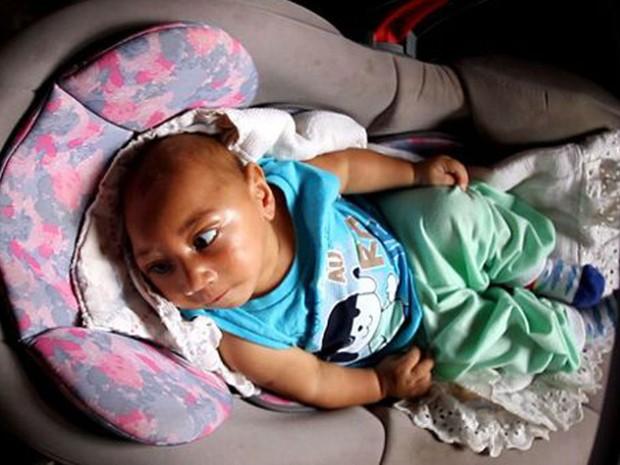 Bebê só teve a microcefalia descoberta 2 meses após nascer. Hoje, aos 4 meses, ainda aguarda a fisioterapia (Foto: Da BBC)