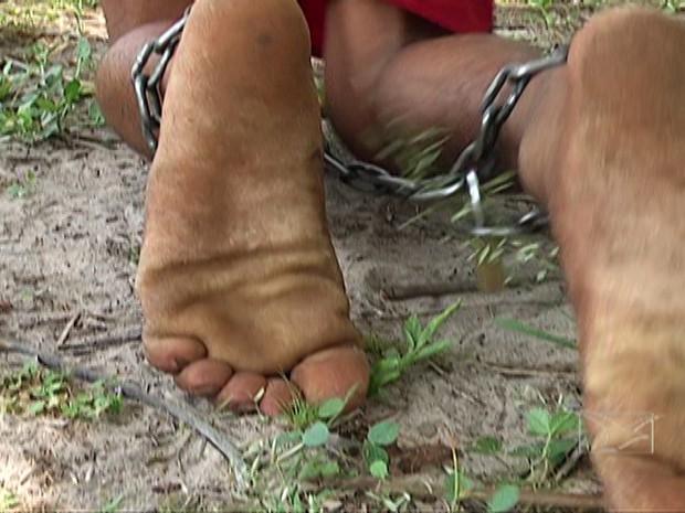 Com problema mental, jovem vive acorrentado em São José de Ribamar (Foto: Reprodução/TV Mirante)