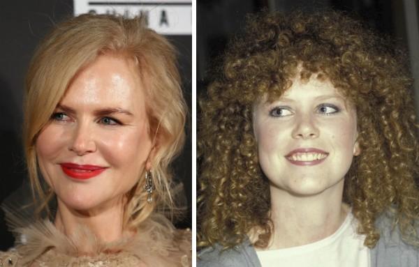 A atriz Nicole Kidman: ates e depois (Foto: Getty)