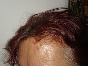 Vítima também foi agredida na cabeça (Foto: Arquivo Pessoal / Maria Fernanda Marques)