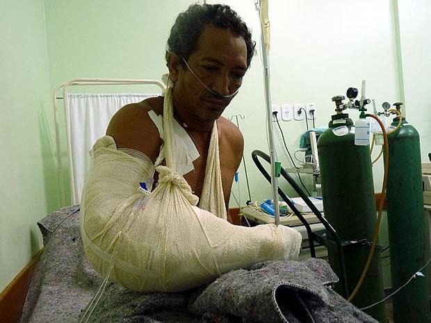 Índio de 44 anos internado em Cuiabá após conflito com a PF pode ter braço amputado (Foto: Funai/Alta Floresta)