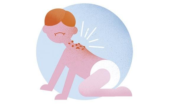 Bebê com brotoeja (Foto: Ilustração: Bárbara Malagoli)