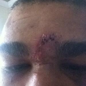 Antônio Pezão cicatriz MMA UFC (Foto: Reprodução/ Twitter)