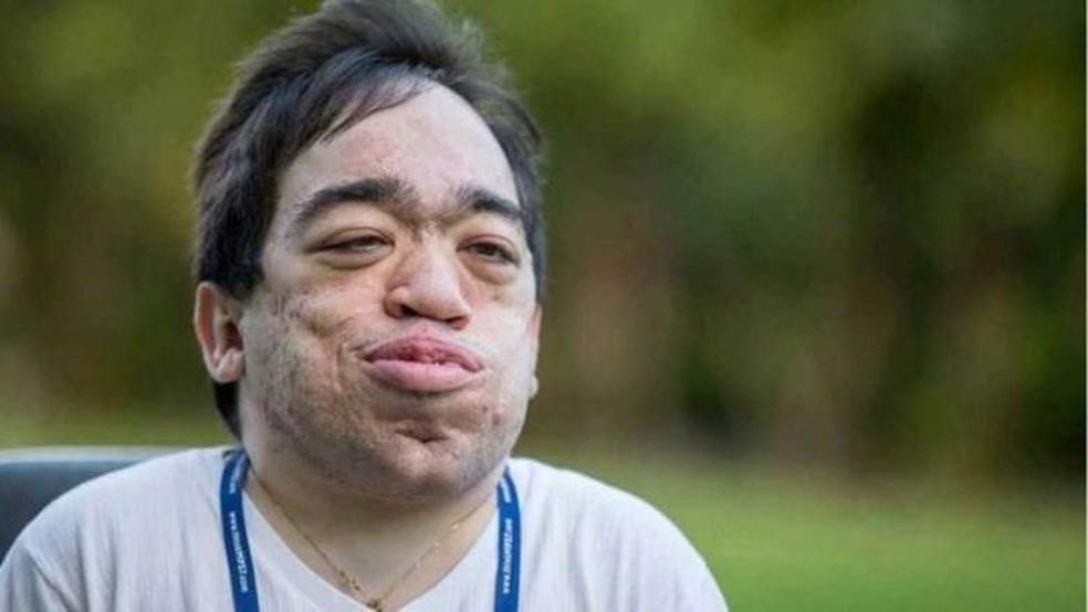 Médicos diziam que Luis Eduardo Próspero, de 26 anos, não chegaria à adolescência  (Foto: Arquivo pessoal)