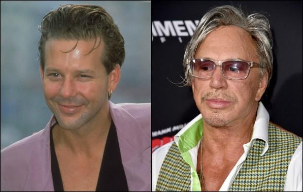 Mickey Rourke mudou muito drasticamente. Basta comparar a foto do ator do início 1989, com 36 anos, com sua estampa atual, aos 62. (Foto: Getty Images)